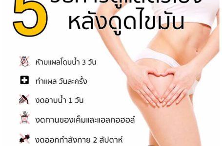 5 วิธี การดูแลตัวเองหลังดูดไขมัน